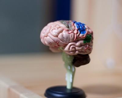 brain_1_400_400
